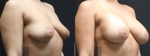 Dual-Plane Breast Augmentation Before and After Photo - Patient 6B