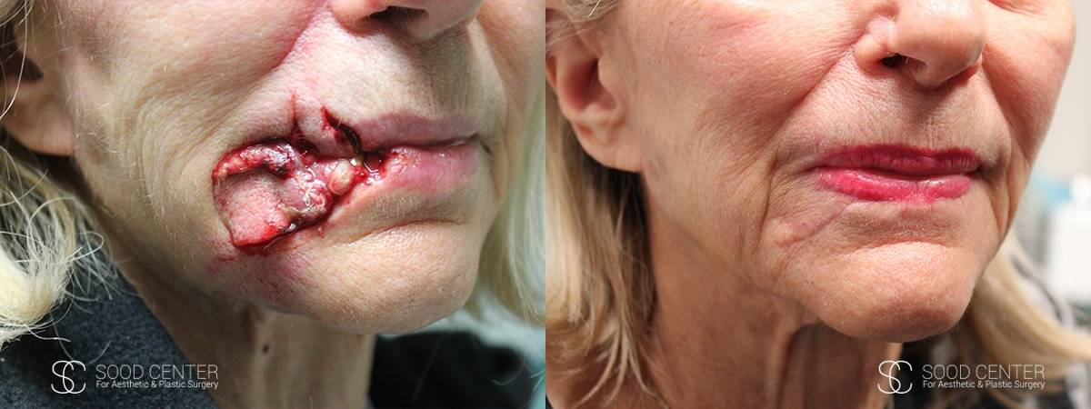 Reconstructive Surgery Before and After Photo - Dog Bite on the Mouth