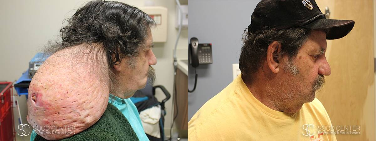 Reconstructive Surgery Before and After Photo - Head Tumor Removal - A