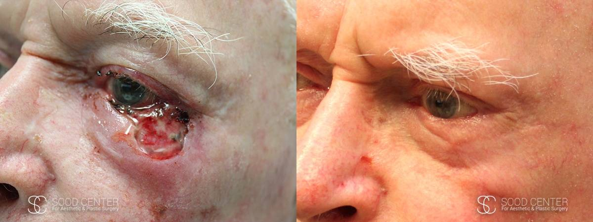 Reconstructive Surgery Before and After Photo - Lower Eyelid - A