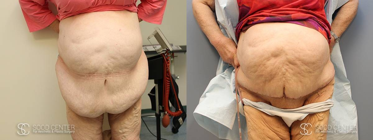 Reconstructive Surgery Before and After Photo - Panniculectomy Patient