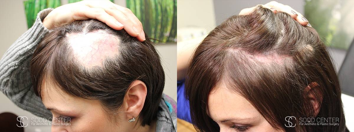 Reconstructive Surgery Before and After Photo - Balded Scalp
