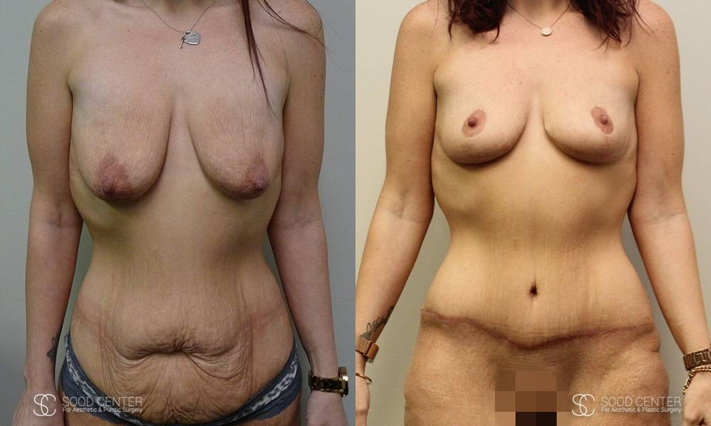 Body Contouring Before and After Photo - Patient 1