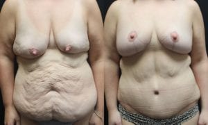 Body Contouring Before and After Photo - Patient 2A