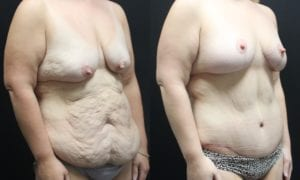 Body Contouring Before and After Photo - Patient 2B