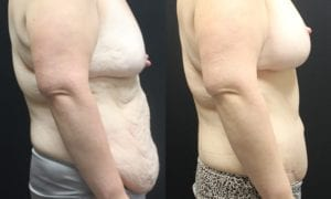 Body Contouring Before and After Photo - Patient 2C