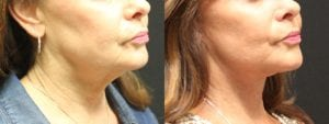 Facelift Before and After Photo - Patient 1A