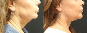 Facelift Before and After Photo - Patient 1B