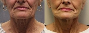 Facelift Before and After Photo - Patient 2A