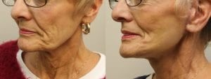 Facelift Before and After Photo - Patient 2B