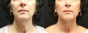 Facelift Before and After Photo - Patient 3A