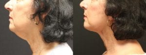 Facelift Before and After Photo - Patient 3C