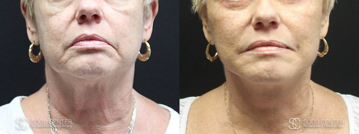 Facelift Before and After Photo - Patient 4A