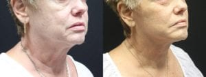 Facelift Before and After Photo - Patient 4B