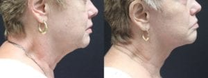 Facelift Before and After Photo - Patient 4C