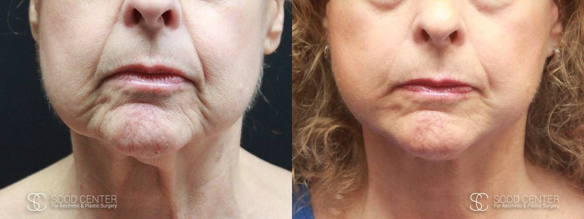 Facelift Before and After Photo - Patient 5A