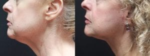 Facelift Before and After Photo - Patient 5B