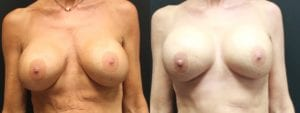 Breast Before and After Photo - Patient 7A