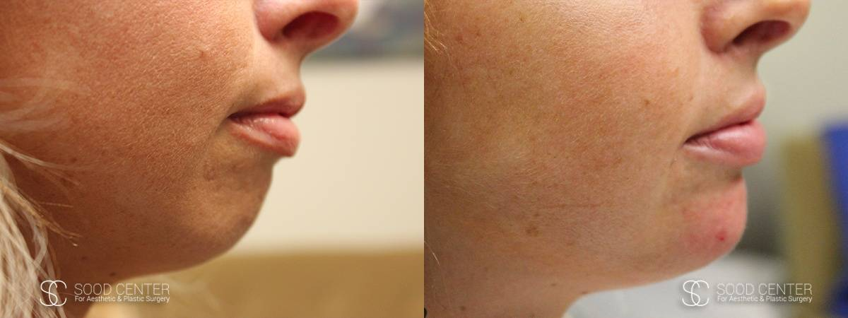 Juvederm Before and After Photo - Patient 1