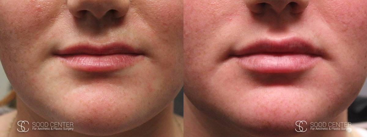 Lip Augmentation Before and After Photos - Patient 1