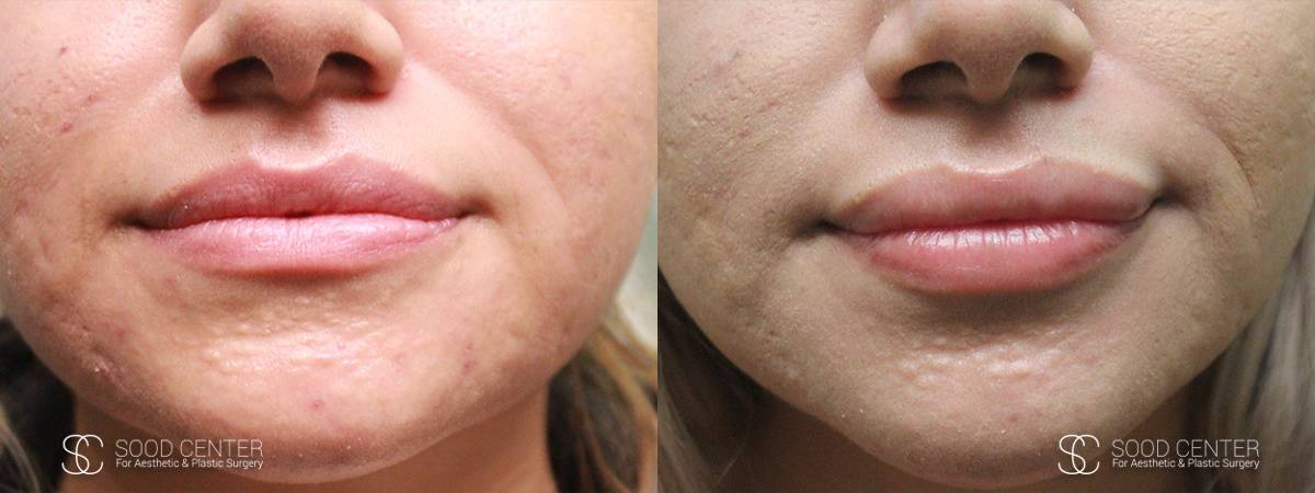 Lip Augmentation Before and After Photos - Patient 8