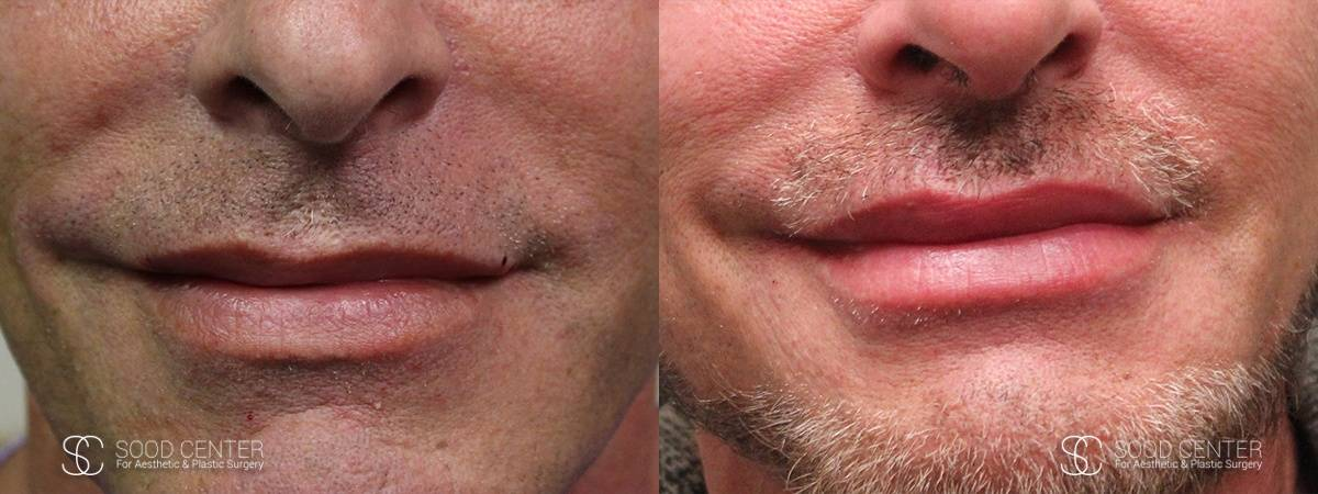Lip Augmentation Before and After Photos - Patient 9