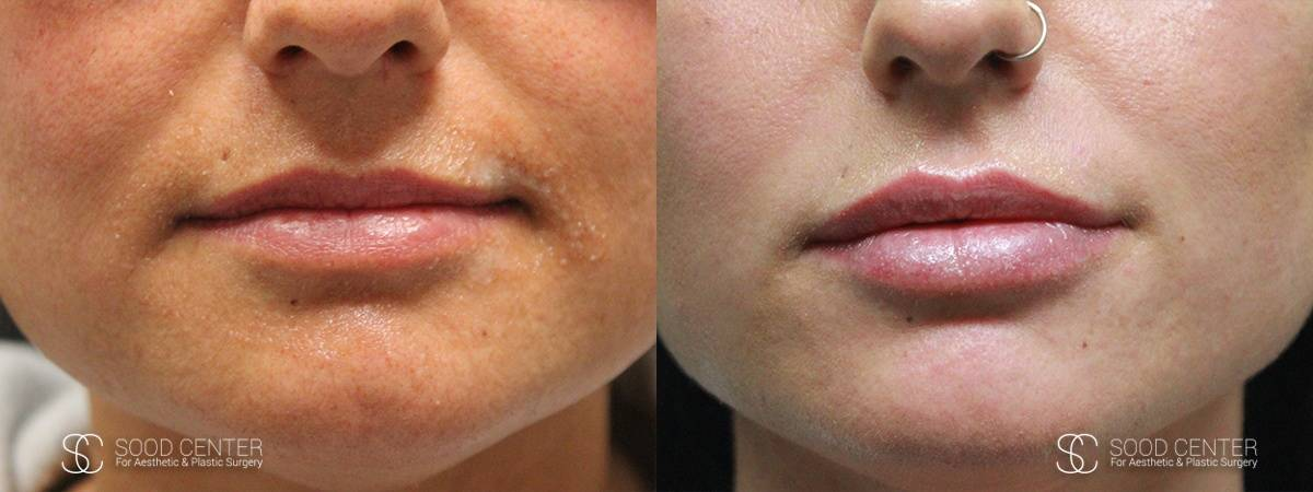 Lip Augmentation Before and After Photos - Patient 10