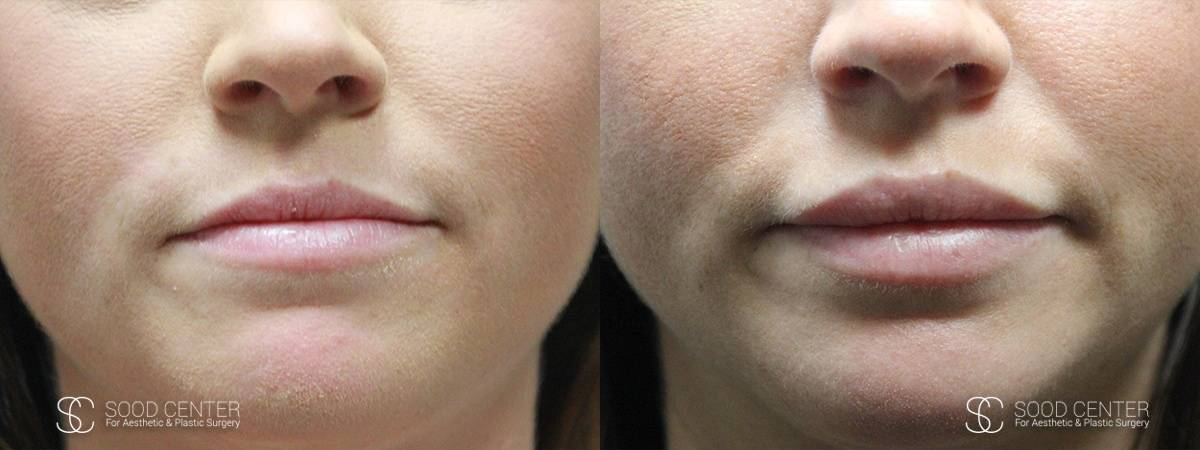 Lip Augmentation Before and After Photos - Patient 11