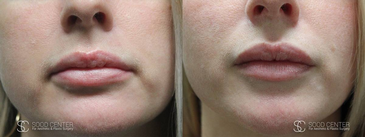 Lip Augmentation Before and After Photos - Patient 12