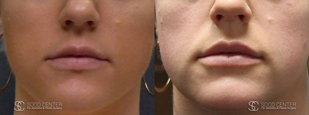Lip Augmentation Before and After Photos - Patient 13