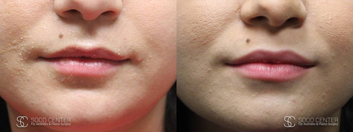 Lip Augmentation Before and After Photos - Patient 14