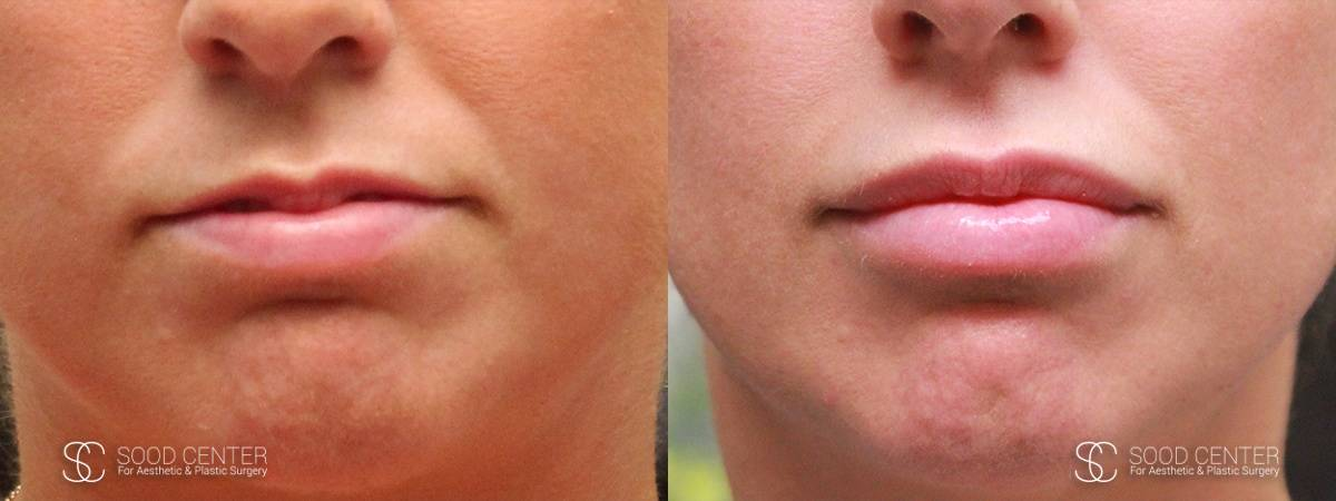 Lip Augmentation Before and After Photos - Patient 2