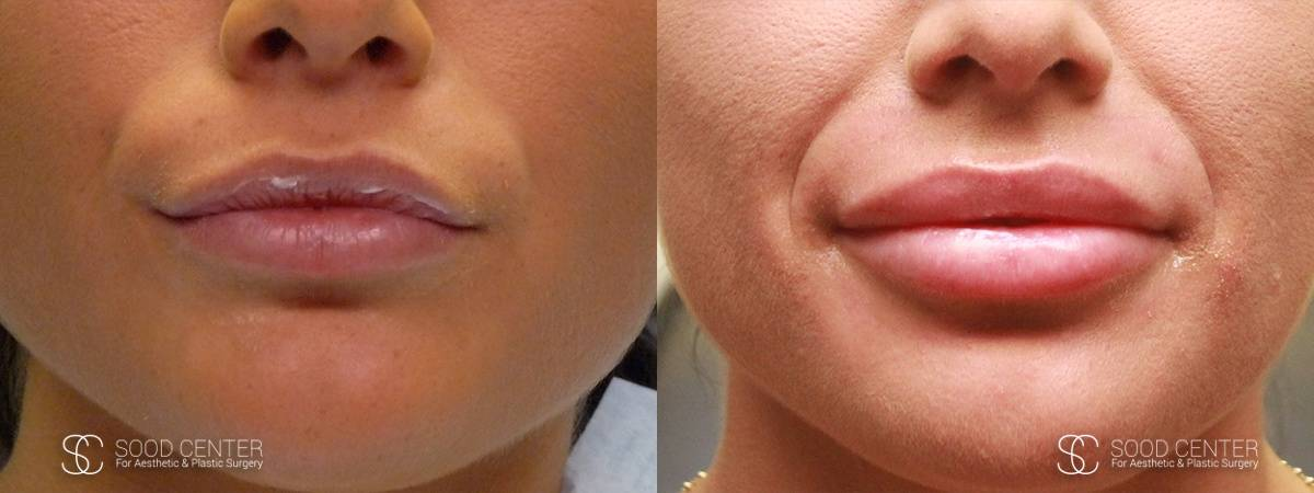 Lip Augmentation Before and After Photos - Patient 16