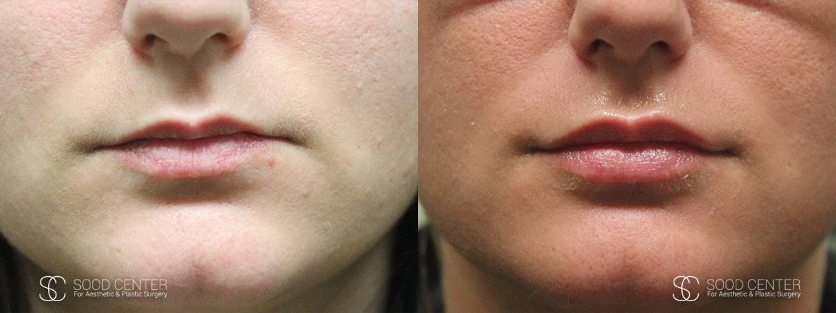 Lip Augmentation Before and After Photos - Patient 17