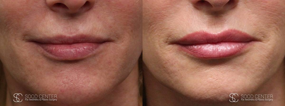 Lip Augmentation Before and After Photos - Patient 3