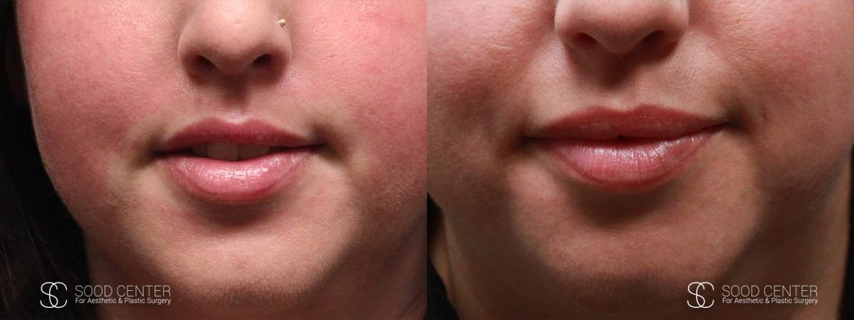 Lip Augmentation Before and After Photos - Patient 4