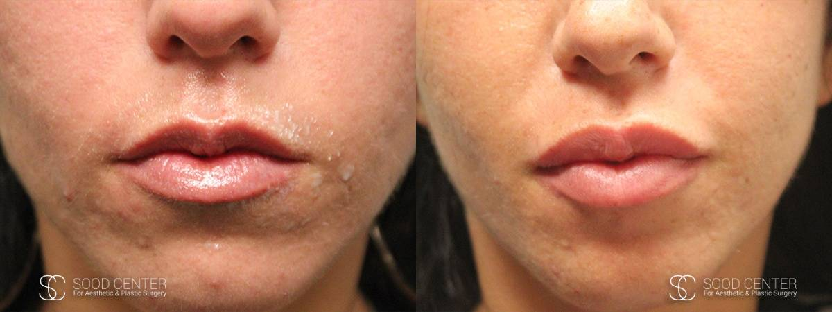 Lip Augmentation Before and After Photos - Patient 5