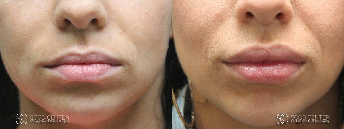 Lip Augmentation Before and After Photos - Patient 6