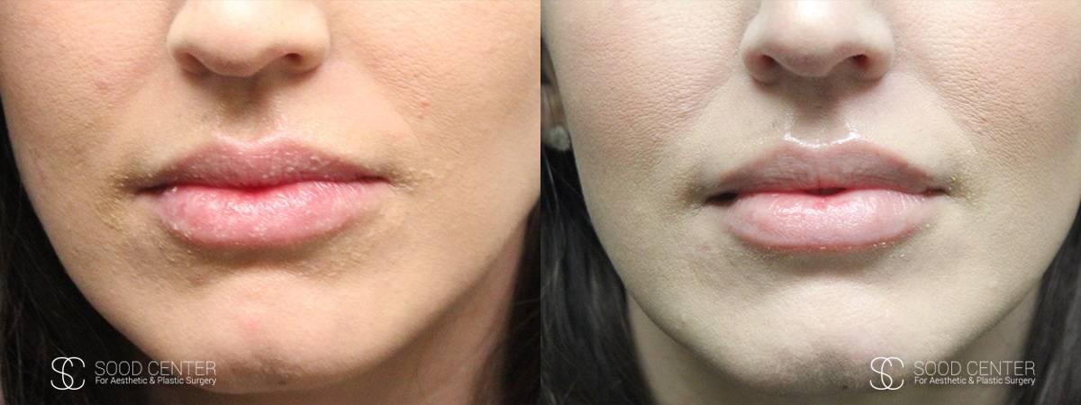 Lip Augmentation Before and After Photos - Patient 7
