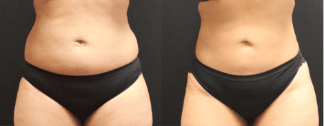 Liposuction Before & After Gallery Section Photo