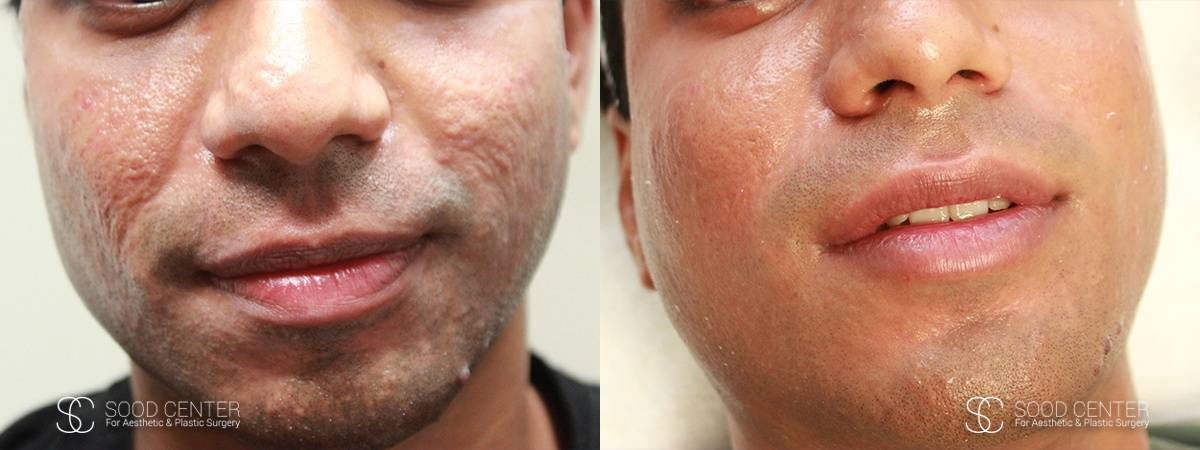 Microneedling Before and After Photo - Patient 1