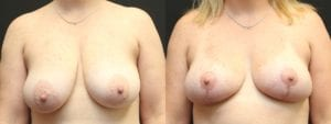 Breast Before and After Photo - Patient 1A