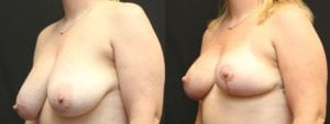 Breast Before and After Photo - Patient 1B