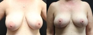 Breast Before and After Photo - Patient 2A