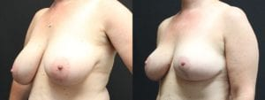 Breast Before and After Photo - Patient 2B