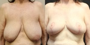 Breast Before and After Photo - Patient 3A