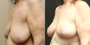 Breast Before and After Photo - Patient 3B