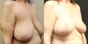Breast Before and After Photo - Patient 3C