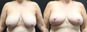 Breast Before and After Photo - Patient 4A