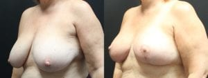 Breast Before and After Photo - Patient 4B